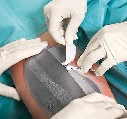 A surgical team is operating on a chronic wound