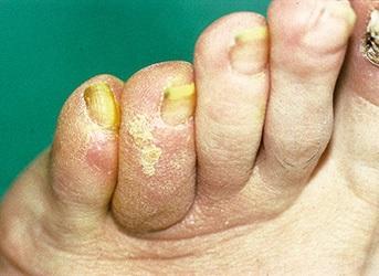 Durchblutungsstörungen der Zehen