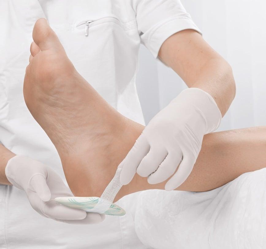 răni cronice la picioare